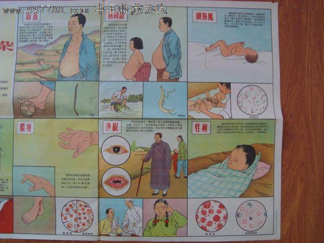 年代2开老卫生宣传画预防传染病 5 接触传染